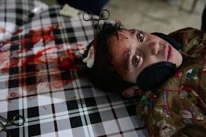 A Syrian field hospital in Douma