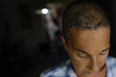 Injured Venezuelan activists struggle to heal