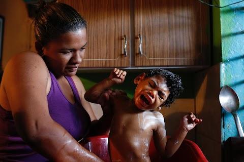 Epileptics struggle amid drug shortages in Venezuela