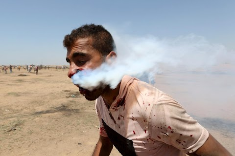 Tear-gas canister puts Gazan on life support