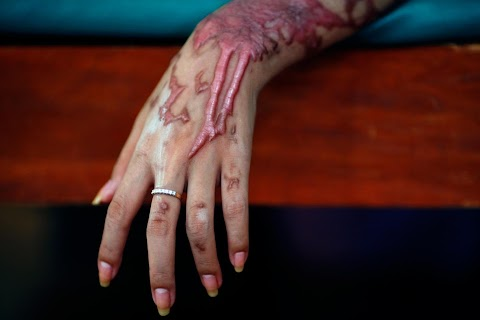 Surviving acid attacks
