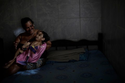 Mothers of babies afflicted by Zika fight poverty, despair