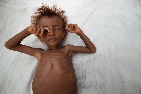 Risk of famine looms in Yemen