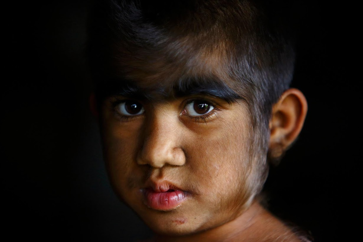 Редкие генетические заболевания у детей фото