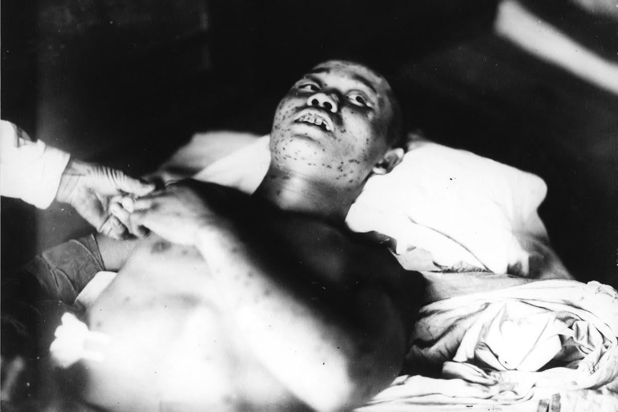 広島第一陸軍病院で手当てを受ける21歳の兵士。1945年9月3日(2016年 ロイター/広島平和記念資料館提供)