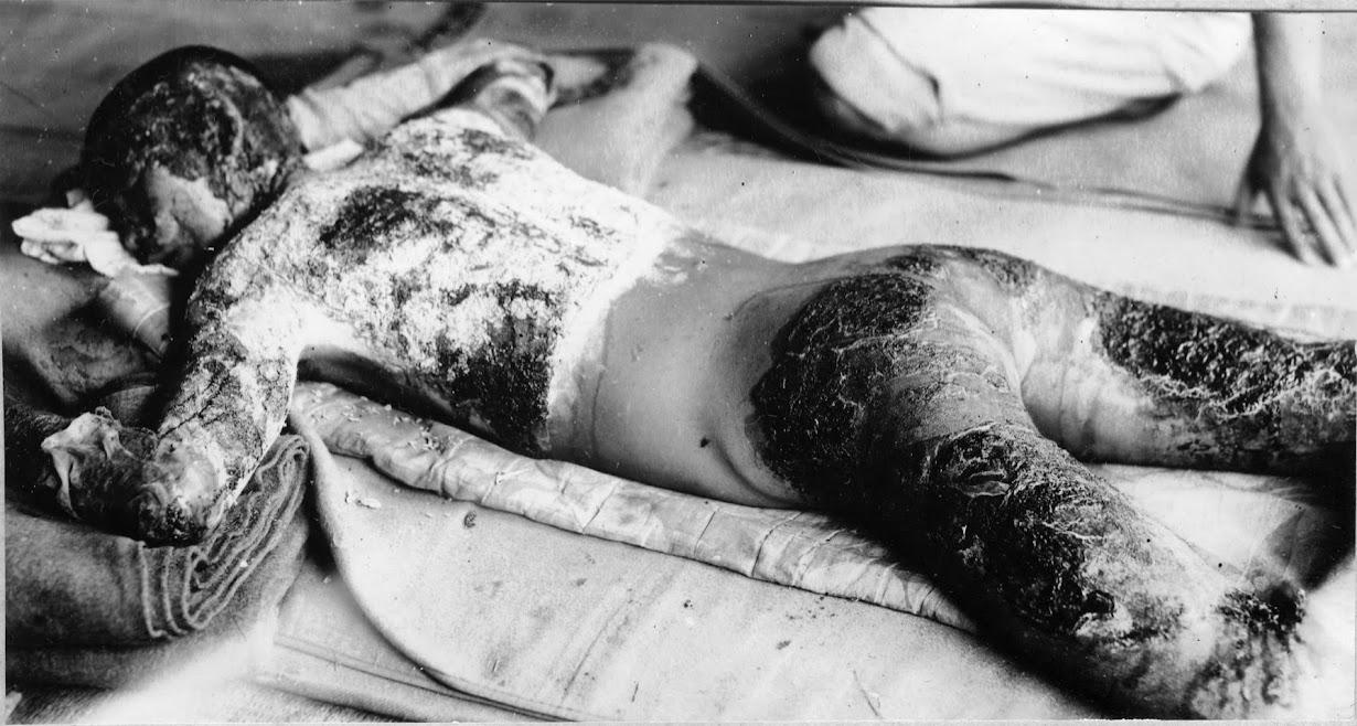 似島の病院で手当てを受ける男性。1945年8月(2016年 ロイター/広島平和記念資料館提供)